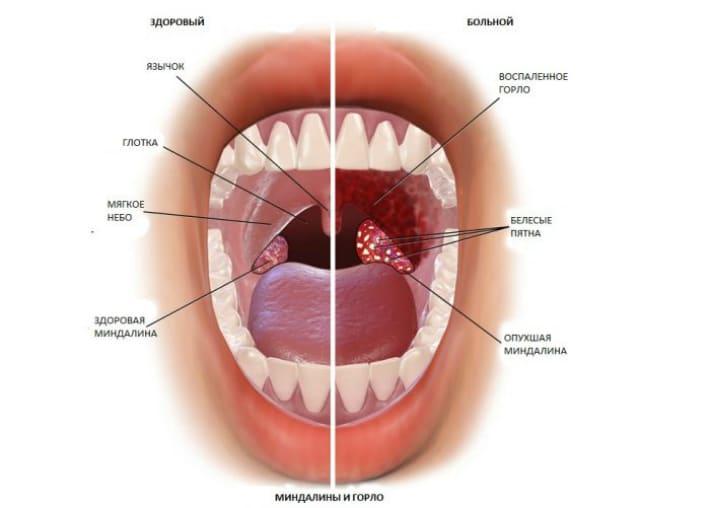Здорове і хворий стан горла