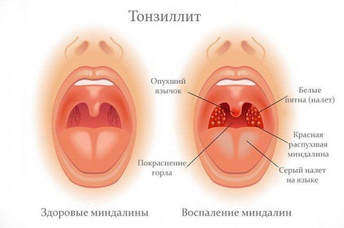 Здорові та запалені мигдалини