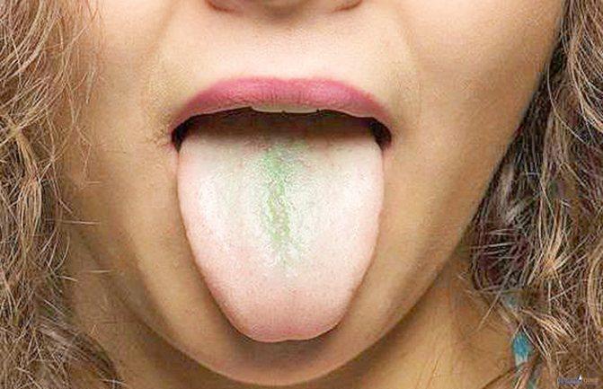 Зелений Наліт на язіці: діагностика та лікування