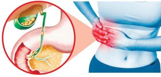 Жовчнокам'яна хвороба як причина болю в правому підребер'ї