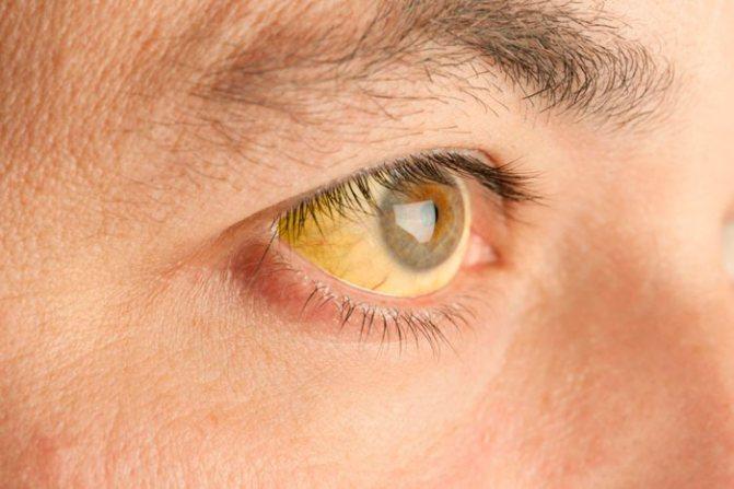 Жовті склери очей причини