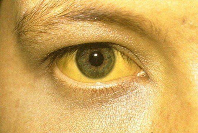 Жовтий колір шкіри у дорослої людини. Причини, чому, як позбутися