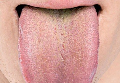Жовтий наліт на язиці