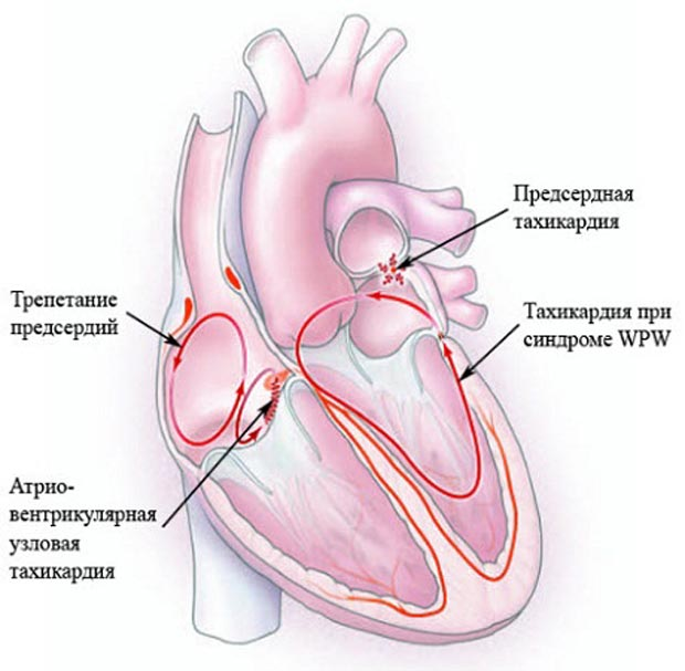 шлуночковатахікардія