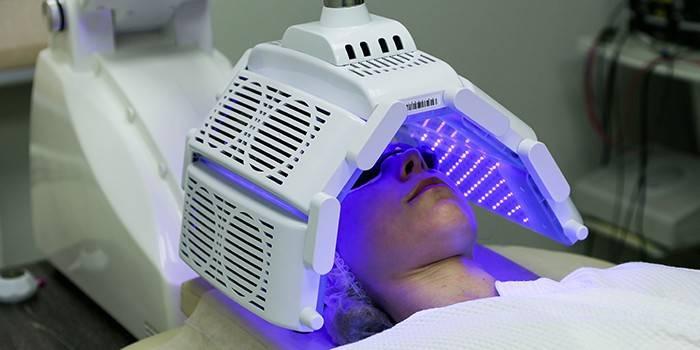 Жінка на сеансі фотодинамічної терапії