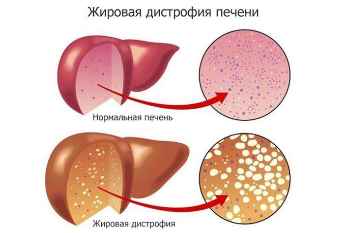жирова дистрофія