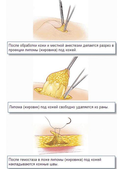 Жировики на тілі. Причини, як позбутися: лікування в домашніх умовах народними засобами, маззю, лазером. До якого лікаря звернутися