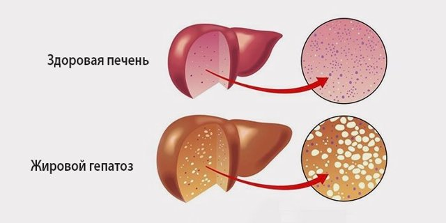 Жировий гепатоз як причина болю