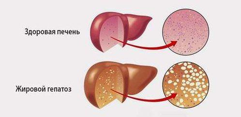 жировий гепатоз