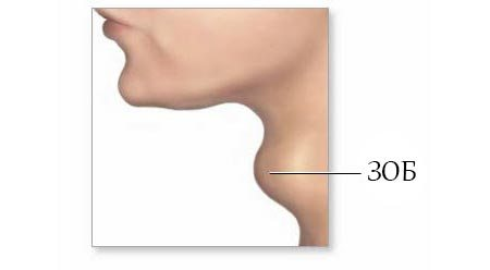 зоб щитовидної залози